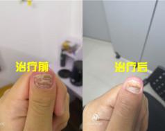 厦门灰指甲案例展示